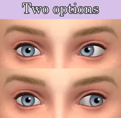 Tukete: Strabismus (cross eye)