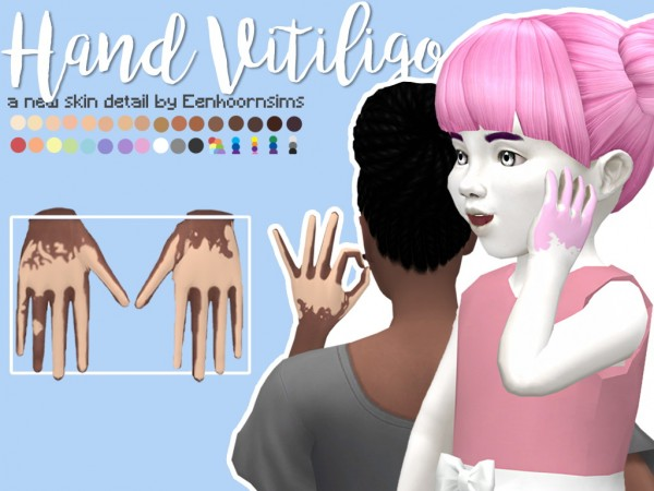 Simsworkshop Hand Vitiligo By Xeenhoornx Sims 4 Downloads
