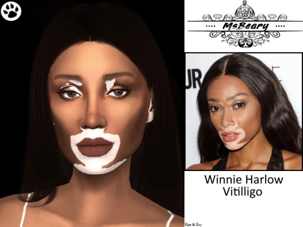 The Sims Resource Winnie Harlow Vitiligo Skin Pattern By Msbeary Sims 4 Downloads