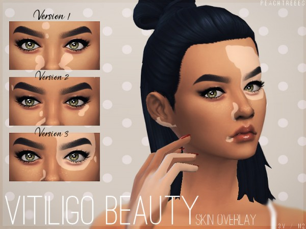 The Sims Resource Vitiligo Beauty Skin Overlay N2 By Peachtreees Sims 4 Downloads