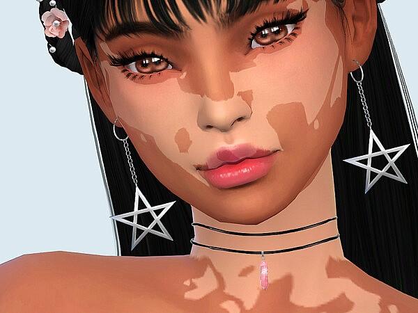 Skin Detail Vitiligo Set No. 2 sims 4 cc